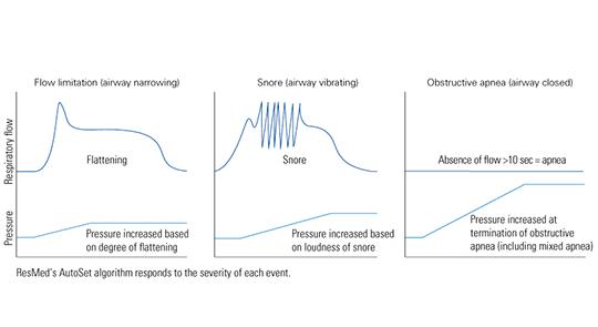AutoSet_Technology_graph-1